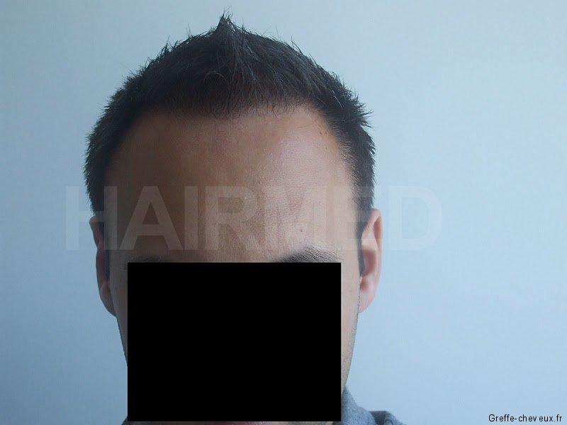 3880fue apres12mois 01 greffe cheveux. Black Bedroom Furniture Sets. Home Design Ideas