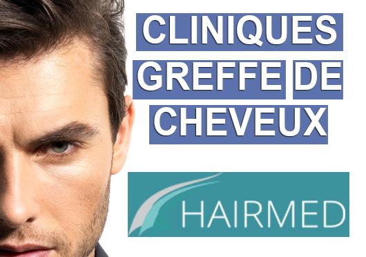 cliniques greffe de cheveux turquie belgique tunisie inde et usa. Black Bedroom Furniture Sets. Home Design Ideas