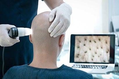 consultation greffe de cheveux