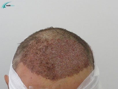 Greffe de cheveux Postop