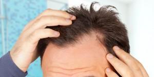 perte-de-cheveux