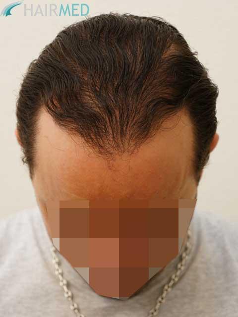greffe de barbe la nouvelle tendance masculine au poil. Black Bedroom Furniture Sets. Home Design Ideas