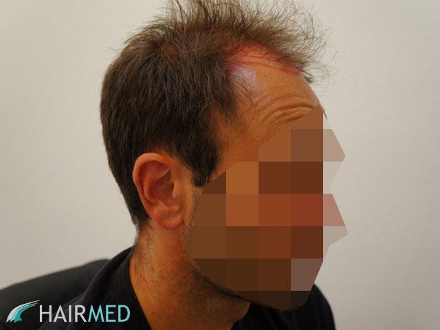 implants capillaires turquie r sultat 3800 greffes avec dr kayihan. Black Bedroom Furniture Sets. Home Design Ideas