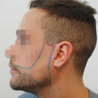 BHT implant barbe