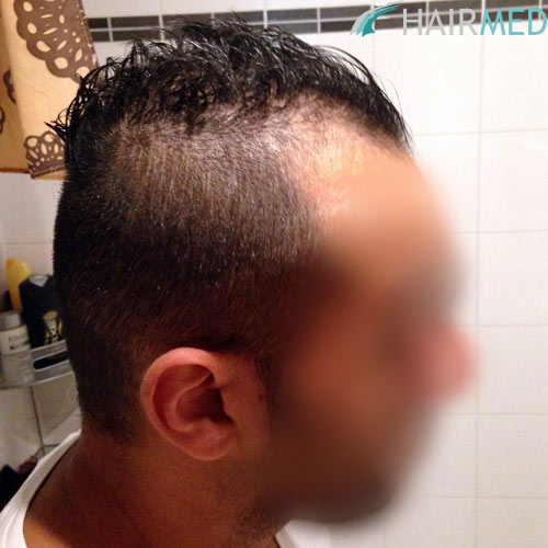greffe de cheveux istanbul