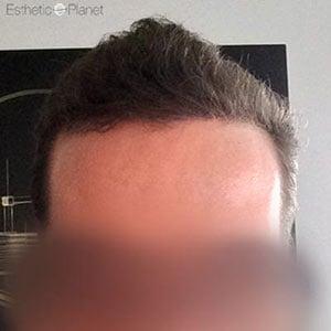 greffe de cheveux fue dr ergin Hacer Yuce