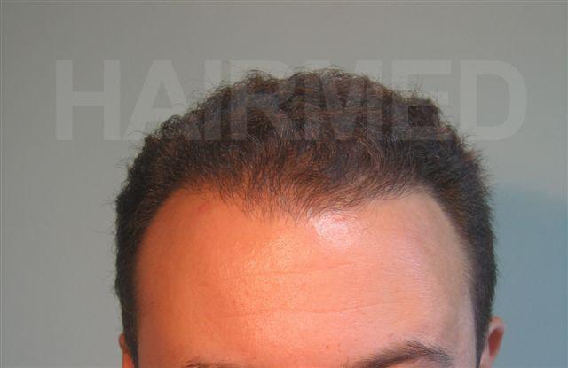 Implant capillaire FUT Turquie