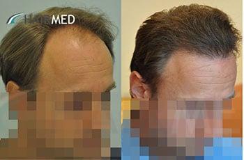 Greffe cheveux dr sikos Hongrie