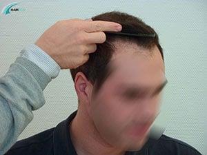 Après greffe de cheveux 4000 greffons