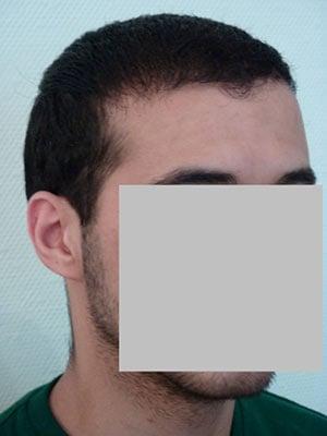 greffe cheveux 9 mois