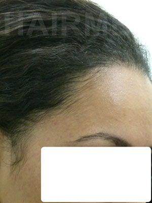 Greffe de cheveux, abaissement ligne frontale