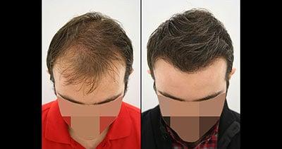 Greffe cheveux avant après Dr Karadeniz