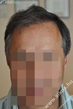 Résultat greffe de cheveux Dr Sikos
