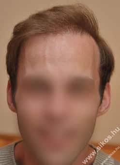 Greffe de cheveux Dr Sikos Géza Budapest