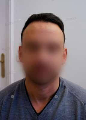 Greffe cheveux implant capillaire