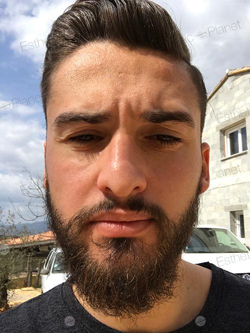 greffe de barbe tarif