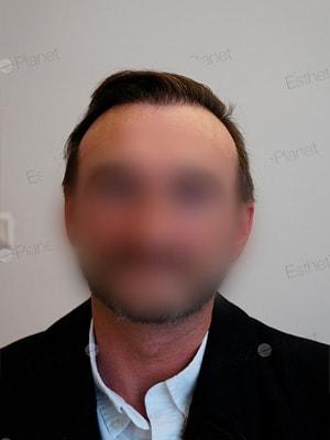 Implant cheveux