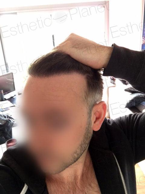 Greffe de cheveux résultat avant apres