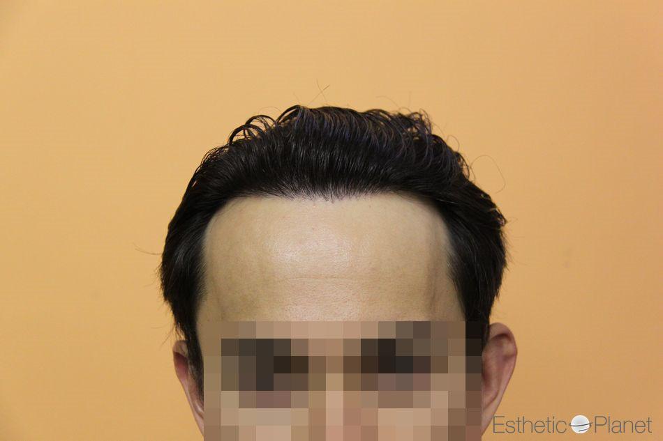 Résultat greffe de cheveux clinique du Dr Bisanga