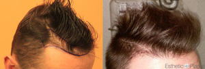 Résultat avant après greffe cheveux Dr Ouriaghli