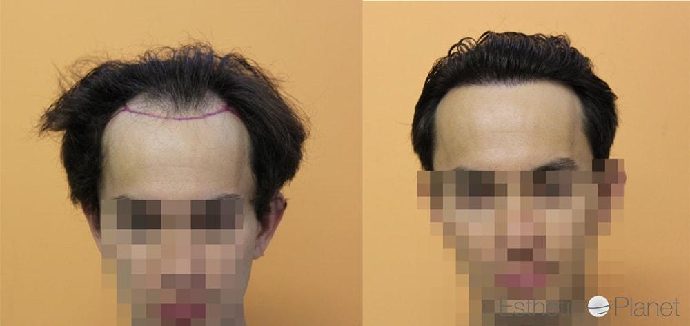 Avant / Après greffe de cheveux Dr. Bisanga