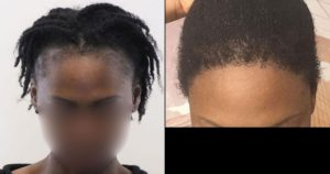 cheveux afro - Dr Karadeniz