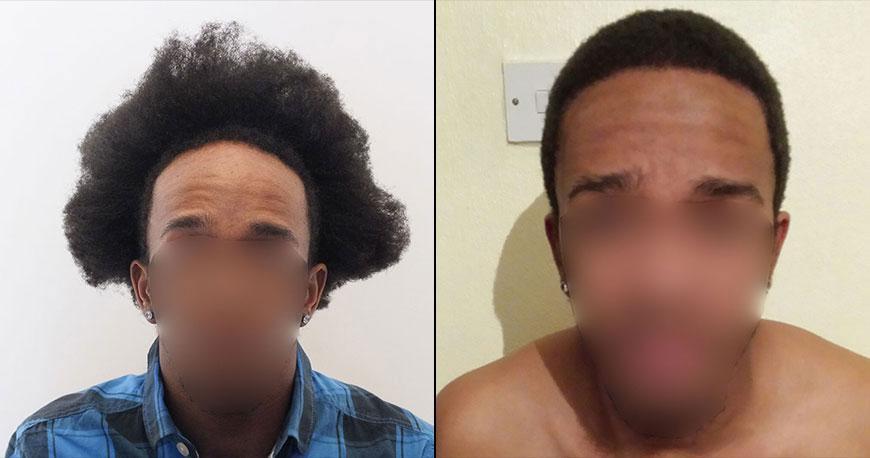 Cheveux Afro Dr Karadeniz