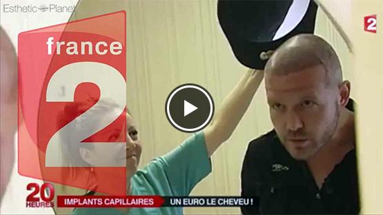 reportage france 2 greffe cheveux turquie dr beyhan zeybek tourisme medical