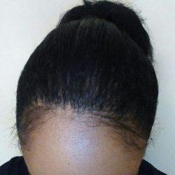 greffe de cheveux afro fut 2658 greffes dr christian bisanga. Black Bedroom Furniture Sets. Home Design Ideas