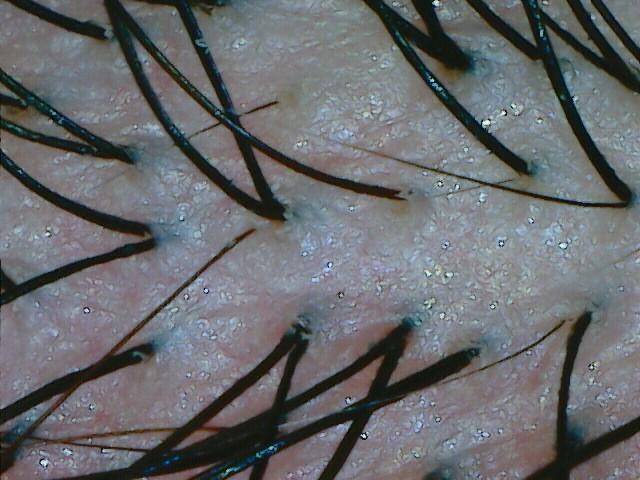 greffe cheveux bht zone donneuse