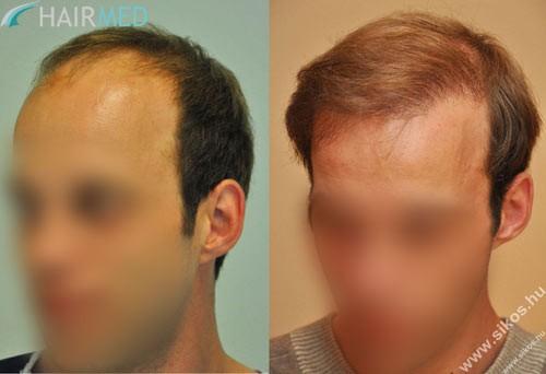 Greffe de cheveux FUE Dr Sikos Budapest