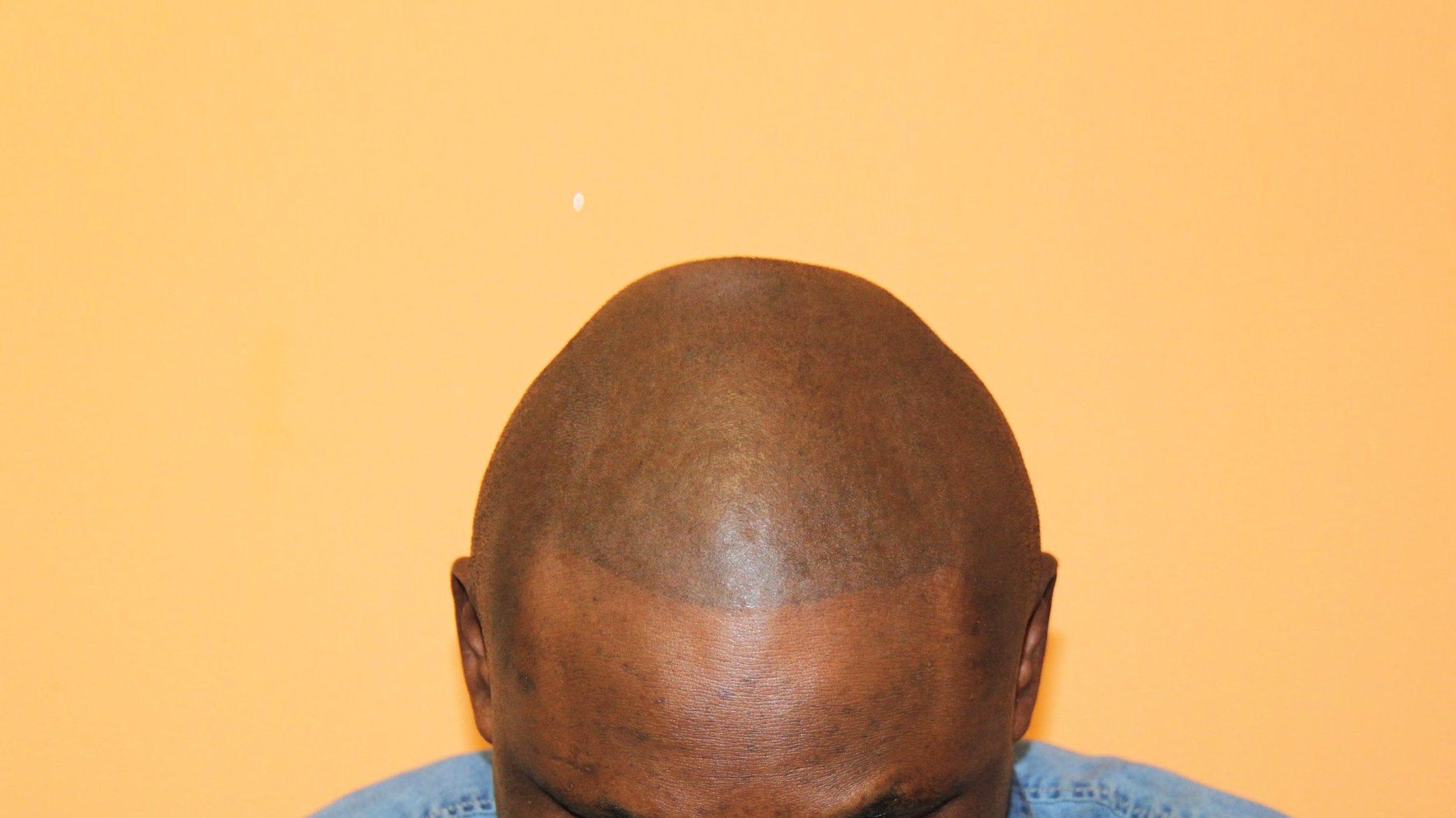 Résultat tricopigmentation